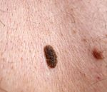 Seborrheic Keratosis Treatment – Tried and Tested