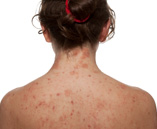 Chronic Dermatitis