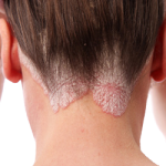 Treatment of Dry Itchy Scalp Conditions