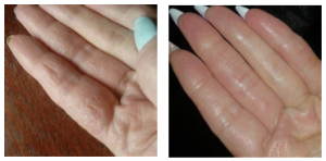 Hand Eczema Treatment