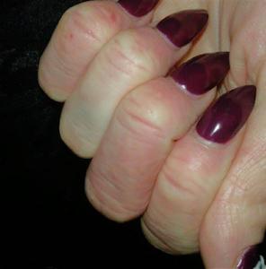 After Emollient Eczema Treatment Cream