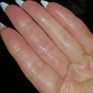 After Photo: Emollient Treatment Hand Eczema & Fingers
